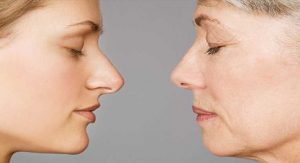 How To Tighten Face Naturally