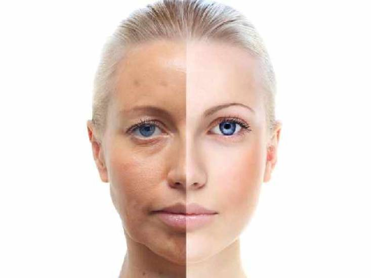6 Dull Skin Causes: What Causes Dull Skin?