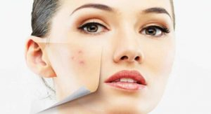 Acne diet: How To Eat When Treating Acne?