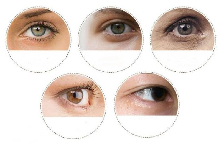 What Are the Most Common Eye Skin Problems?