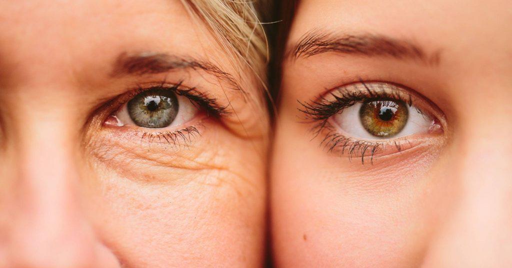 Periorbital Wrinkles
