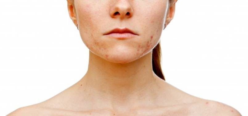How To Remove Jawline Acne?