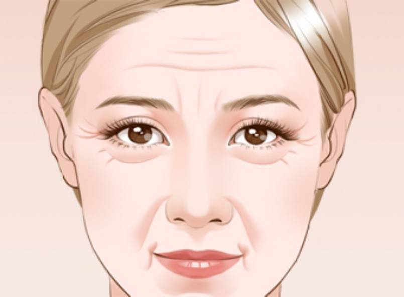 How to Remove Laugh Lines and Keep Your Skin Smooth and Healthy?