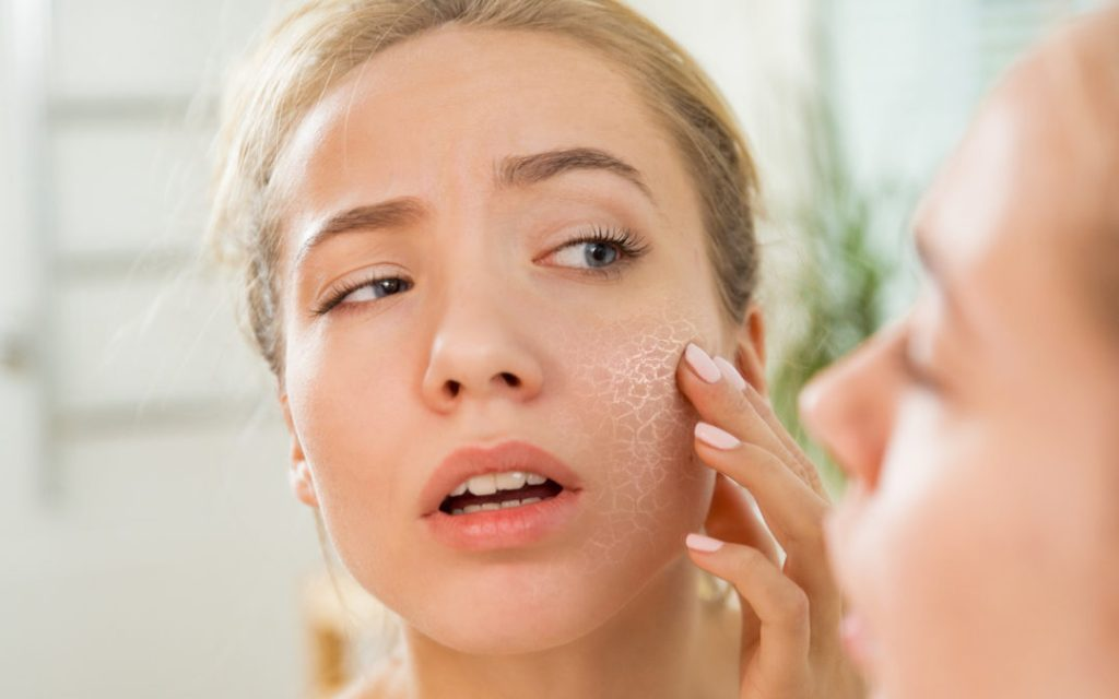 How To Take Care of Dry Skin