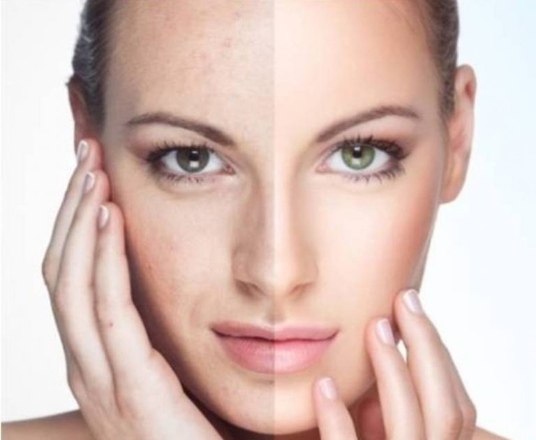 Can Over Exfoliation Worsen or Cause Acne?