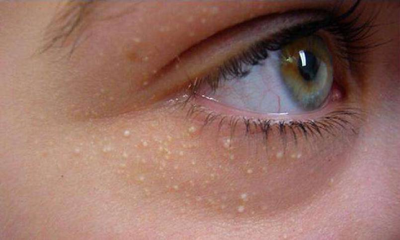 How To Remove Fat Granules Under Your Eyes?